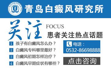 青岛手部的白癜风病因是什么